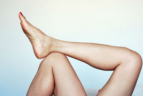 varicose veins cream treatment